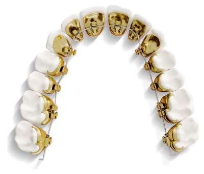 hidden lingual braces incognito