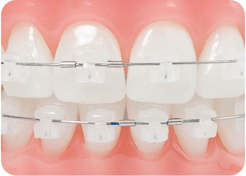 damon clear ceramic fixed braces