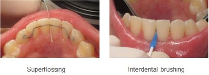 How to clean Fixed Lingual retainer wire behind teeth.